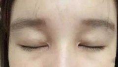 开外眼角留疤怎么办?如何修复疤痕?