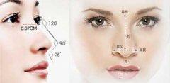 硅胶假体隆鼻价格及影响因素