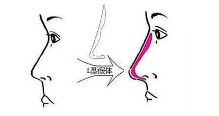 L型隆鼻假体