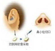 自体耳软骨、鼻中隔和肋软骨隆鼻哪种好?有什么区别?