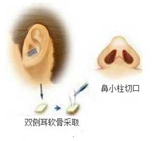 耳软骨隆鼻