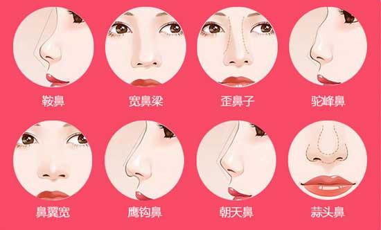 鼻综合,一术多式,改善鼻部多种问题