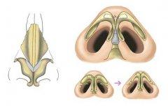 缩鼻翼手术多少钱?费用是多少?