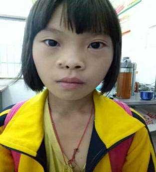 儿童鼻孔先天畸形