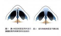 鼻小柱延长手术常用哪种切口