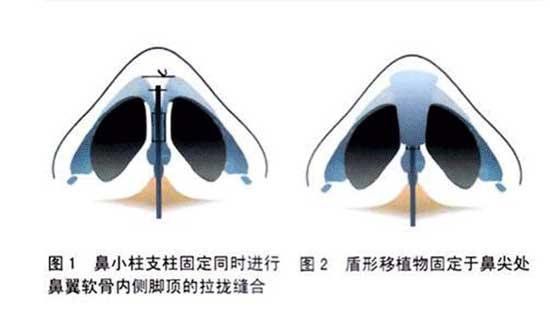 鼻小柱延长切口在哪