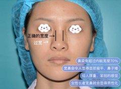 什么是宽鼻?宽鼻矫正的方法有哪些?