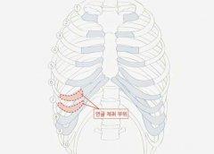 详解肋软骨垫鼻基底手术,肋软骨要磨成粉!