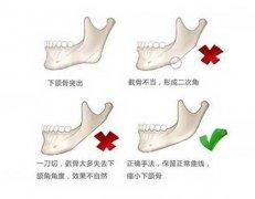 下颌角磨骨手术有哪些方法