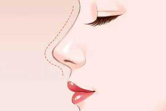 自体真皮垫鼻尖有什么风险