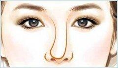 隆鼻后假体歪斜的修复方法