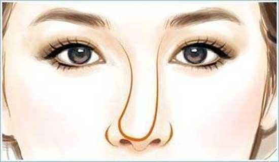 隆鼻假体歪了怎么修复