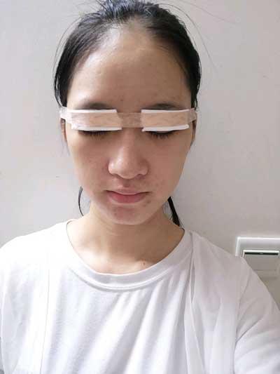 七瑾丶染年的全切双眼皮手术当天照