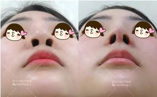 综合鼻整形术前术后对比