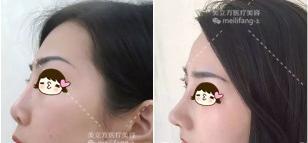 在武汉美立方做鼻综合整形前后对比