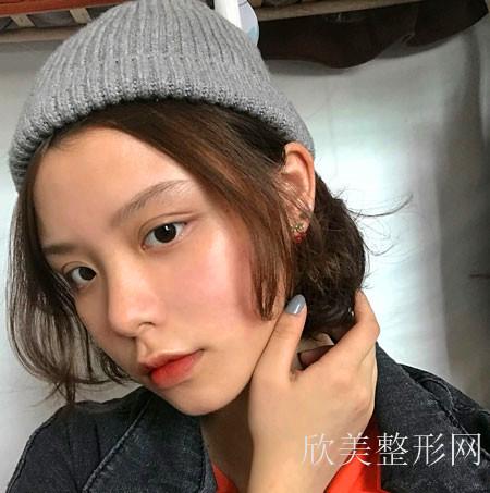 北京艺美面部吸脂案例术后1天