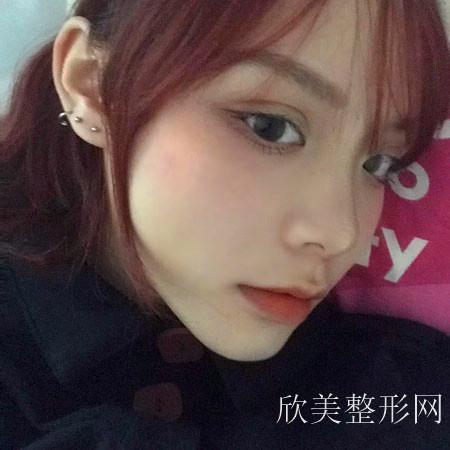 北京艺美面部吸脂案例术后25天