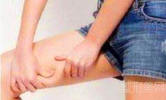 广州中科美邓咏科普:夏天最受欢迎的瘦腿针到底是什么呢?