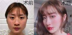 上海仁爱医院整形_做下颌角怎么样?_案例参考_医生_价格_对比图