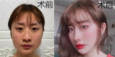 上海仁爱医院整形 做下颌角怎么样?案例参考 医生 价格 对比图