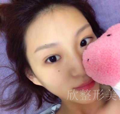 广州瑞港医疗美容门诊部的隆鼻案例