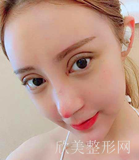 西安美莱医疗美容医院双眼皮案例