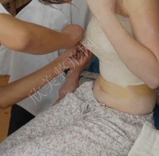 成都艺星整形黄文隆胸怎么样?隆胸案例60天前后对比图分享
