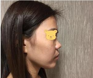 的隆鼻术前照