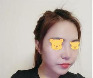 成都成美郑敏做鼻子怎么样?