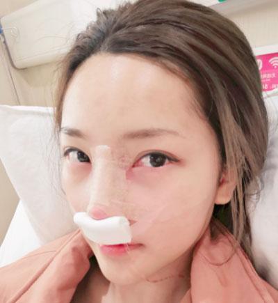 宁波珈禾肋软骨隆鼻案例