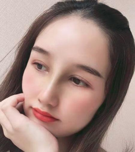 武汉韩辰医疗美容鼻部多项案例