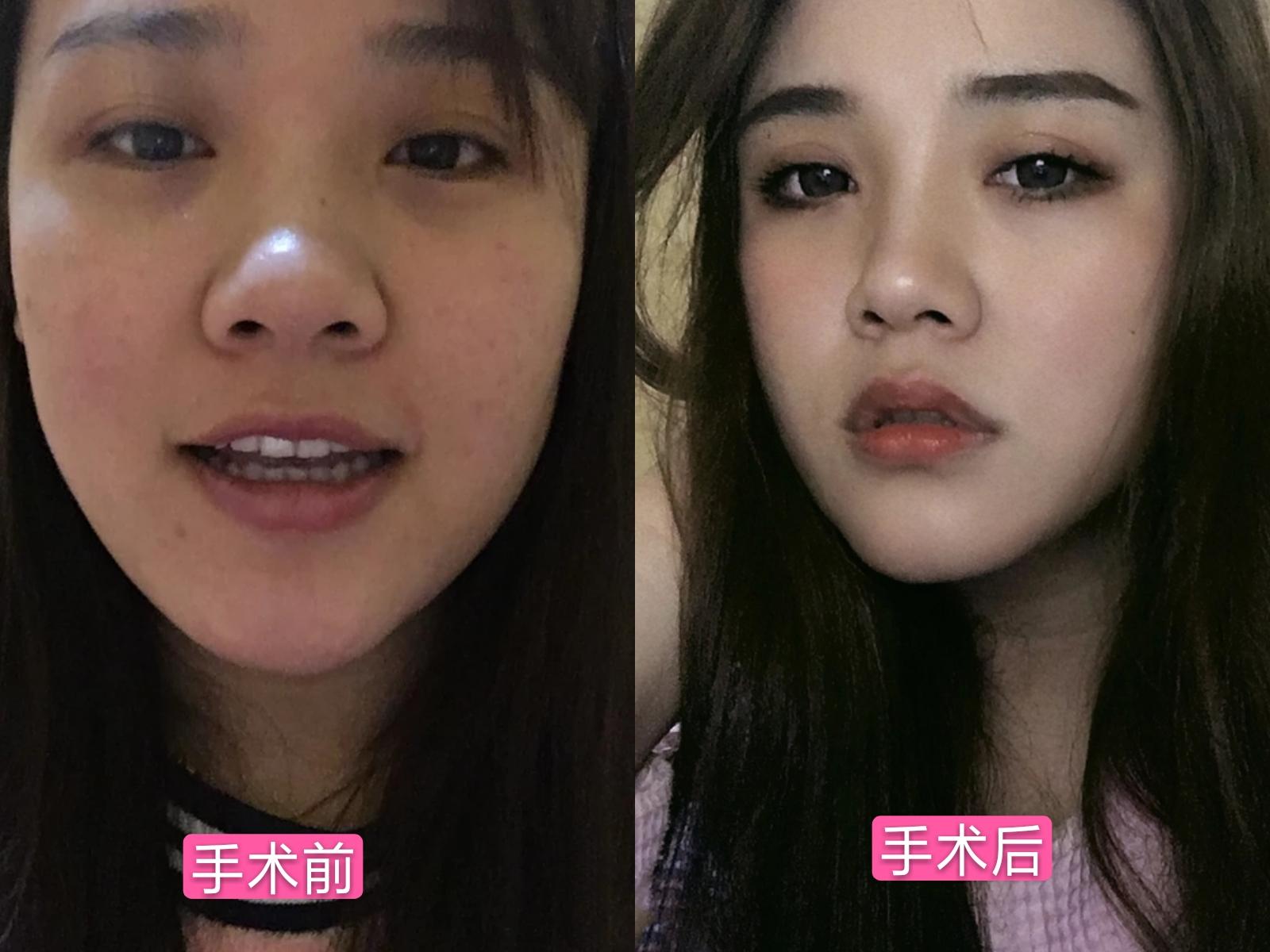 张姣姣医生做双眼皮真人案例分享