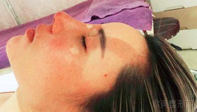 天津圣韩美医疗美容鼻部多项案例