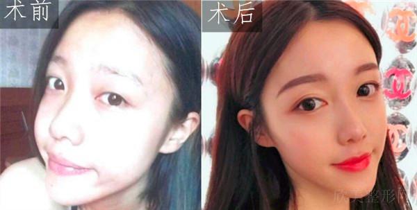 天津维美医疗美容医院切开双眼皮案例
