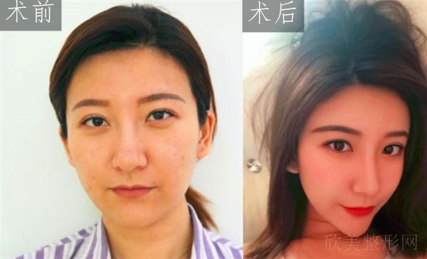 天津维美医疗美容医院自体脂肪面部填充案例