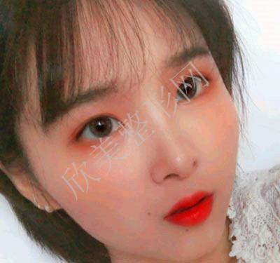 宁波薇琳医疗美容医院肋软骨隆鼻案例