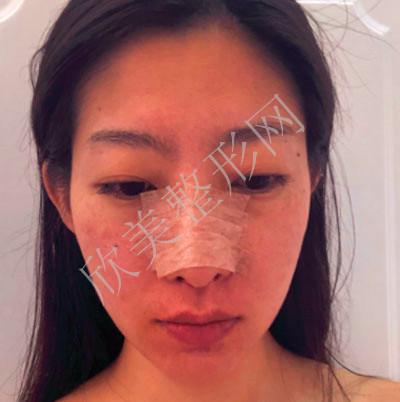 南昌佳美美容医院耳软骨复合隆鼻案例