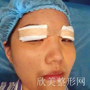艾莱美医疗整形切开双眼皮案例