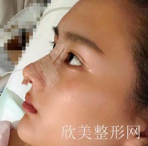 郑州缔莱美鼻部综合案例