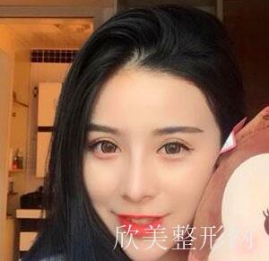 在郑州缔莱美找的杨胜发做的肋软骨隆鼻