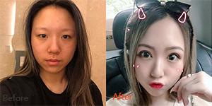 上海美莱何祥龙割双眼皮案例