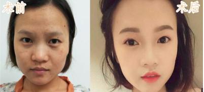 北京欧华美容医疗王芳案例