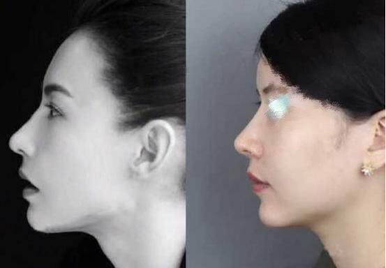 北京八大处王克明隆鼻修复