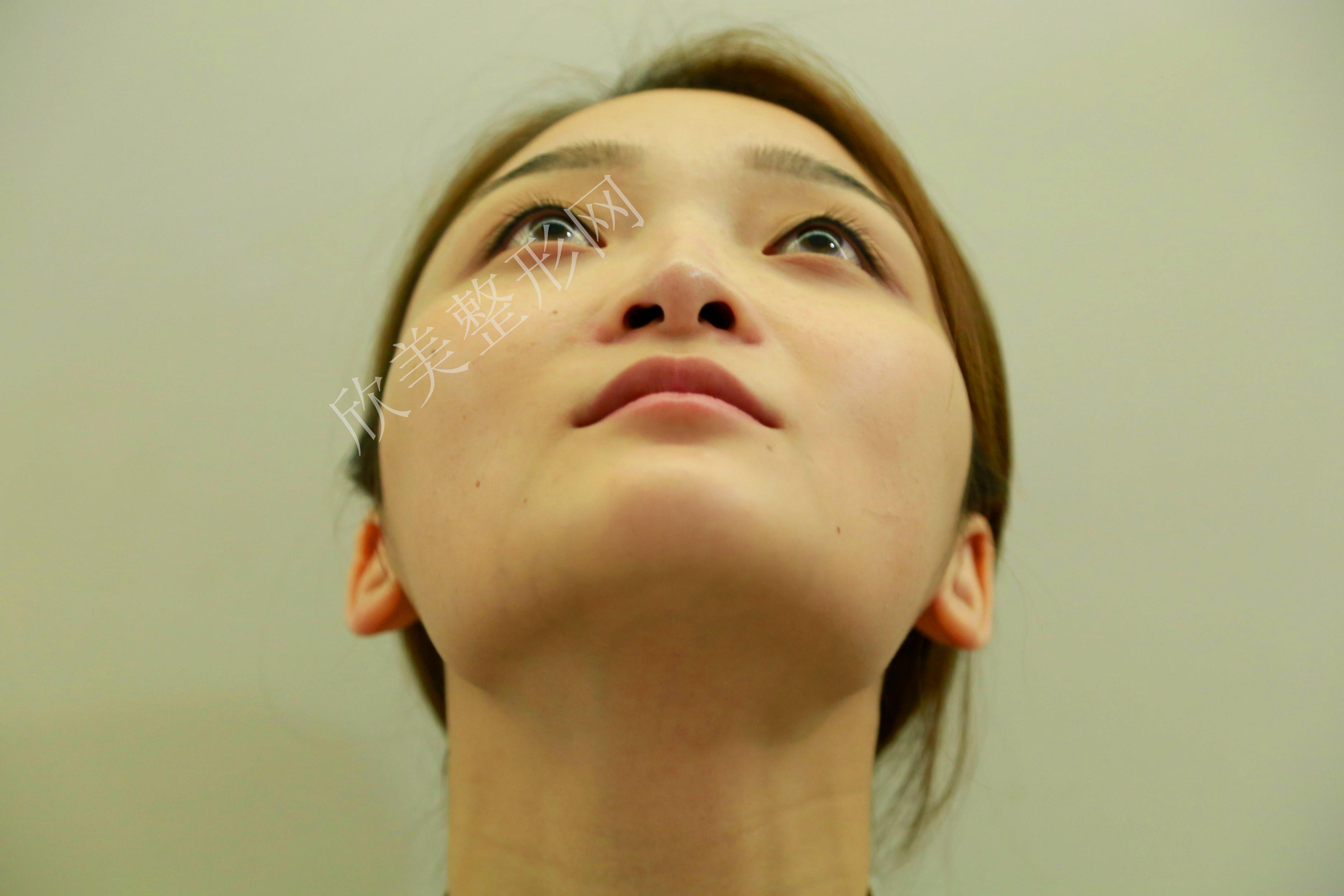柚子君的鼻修复术前照