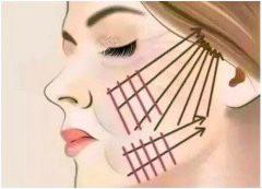 面部线雕有什么危害吗?武汉壹加壹王政祥做线雕案例分享