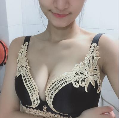 深圳非凡整形医院王永祥隆胸案例