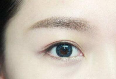 江苏连云港祛眼袋怎么样?祛眼袋价格多少钱?