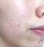 在武汉美成潘玛莉做的注射水光针,皮肤变得嫩嫩的~