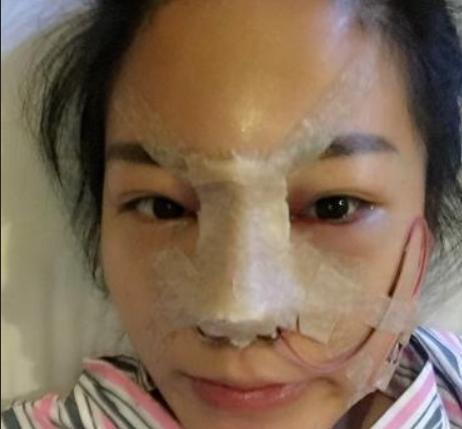 上海隆鼻哪里好?上海出名的隆鼻医生?