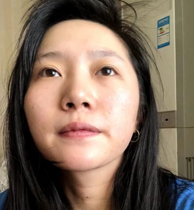 成都正好整形医院刘志春做隆鼻手术